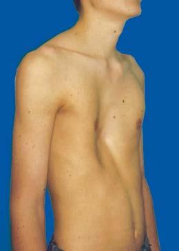 Op asymmetrische brust Asymmetrische Brust